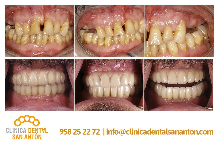 CASOS-CLINICOS-clinica-dental-san-anton