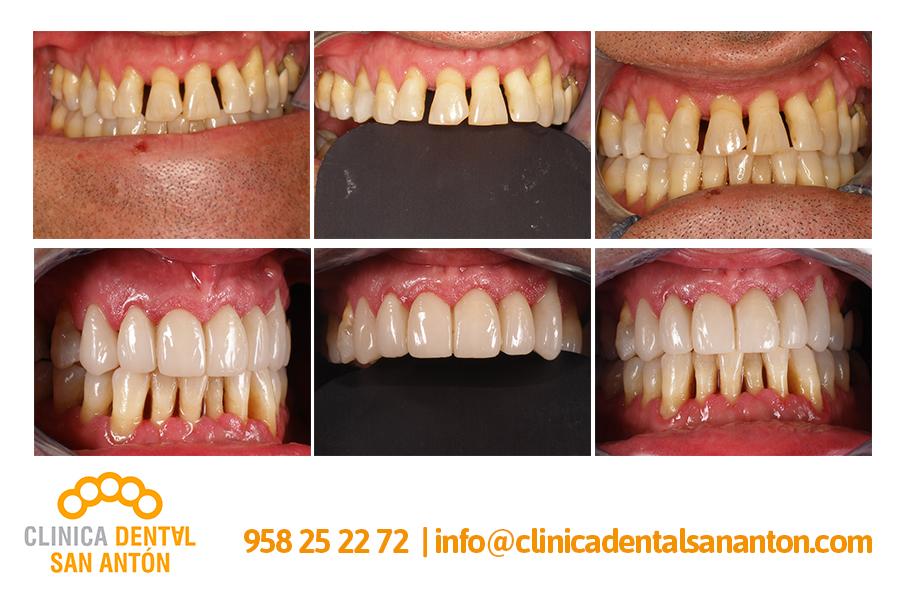 CASOS-CLINICOS3
