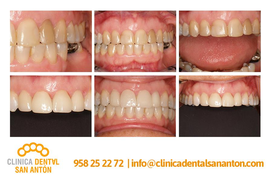CASOS-CLINICOS4