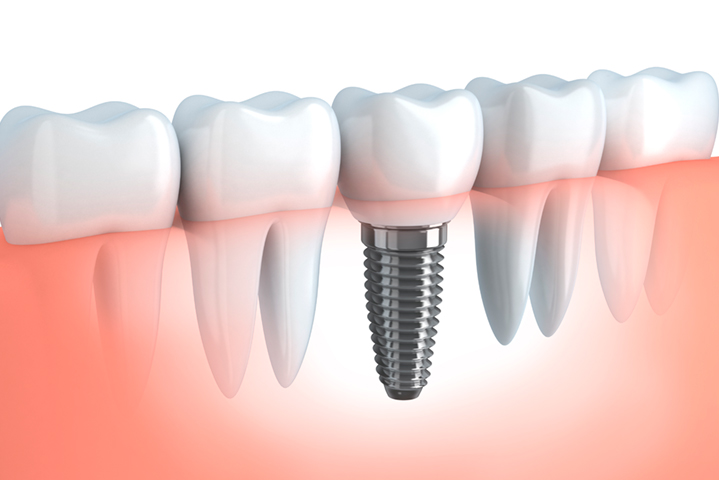 implantes-clinica-dental-granada